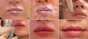 купить филлер для губ